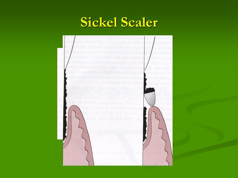 Sickel Scaler