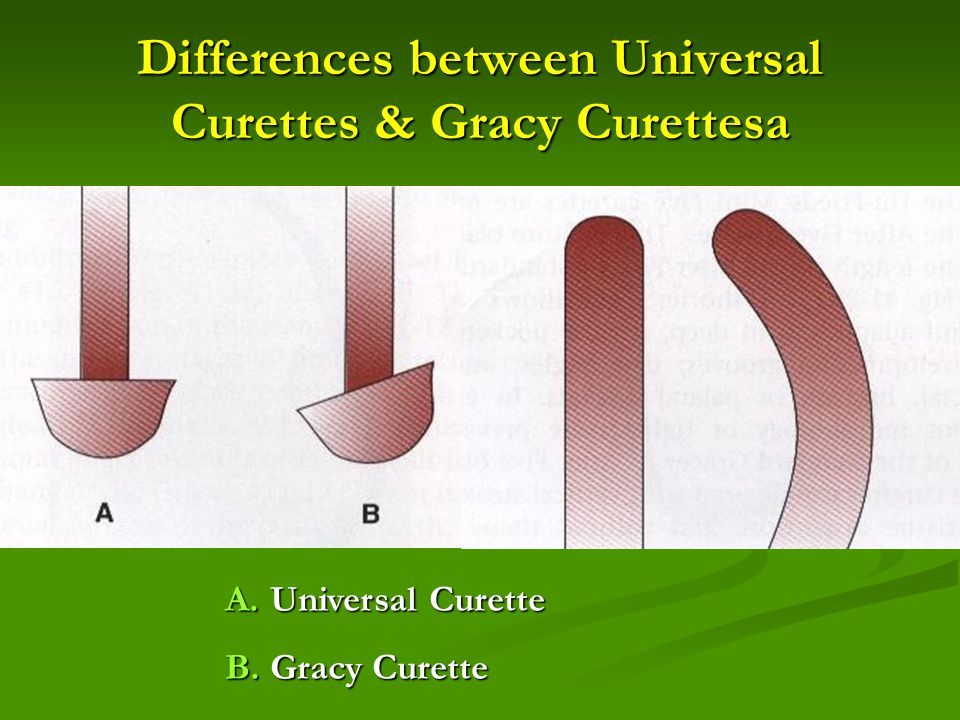 Differences between Universal Curettes & Gracy Curettesa