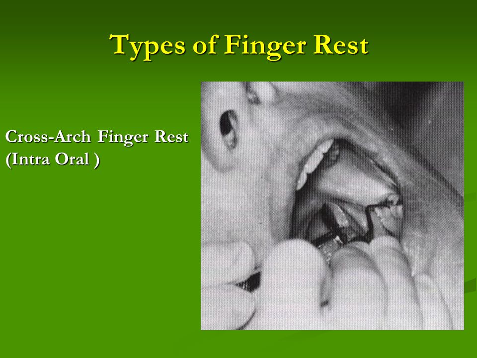 Types of Finger Rest Cross-Arch Finger Rest (Intra Oral )