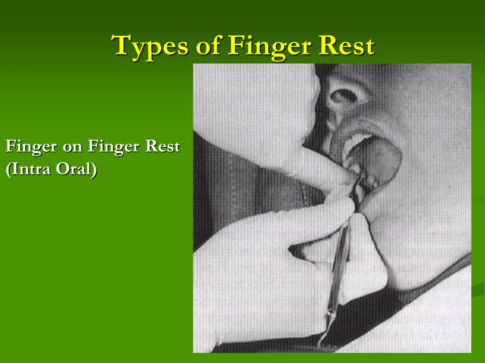 Types of Finger Rest Finger on Finger Rest (Intra Oral)