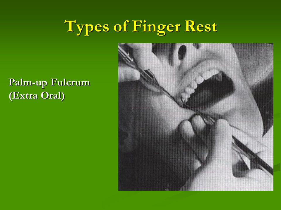 Types of Finger Rest Palm-up Fulcrum (Extra Oral)