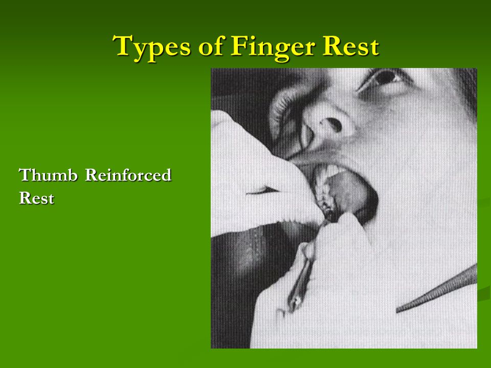 Types of Finger Rest Thumb Reinforced Rest