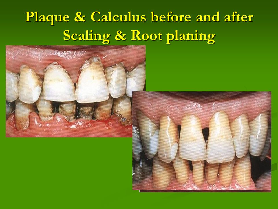 Plaque & Calculus before and after Scaling & Root planing