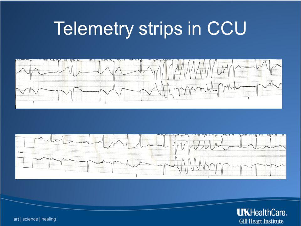 Telemetry strips in CCU