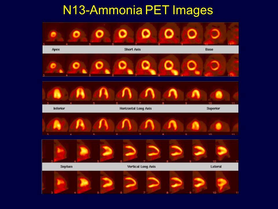 N13-Ammonia PET Images
