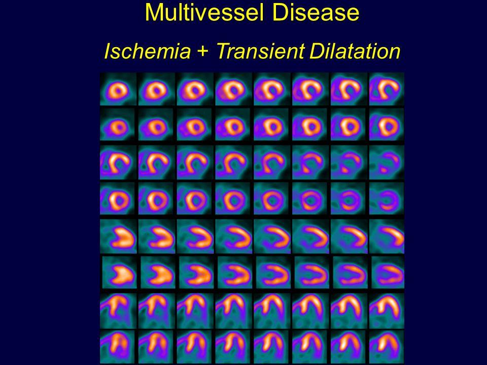 Ischemia + Transient Dilatation