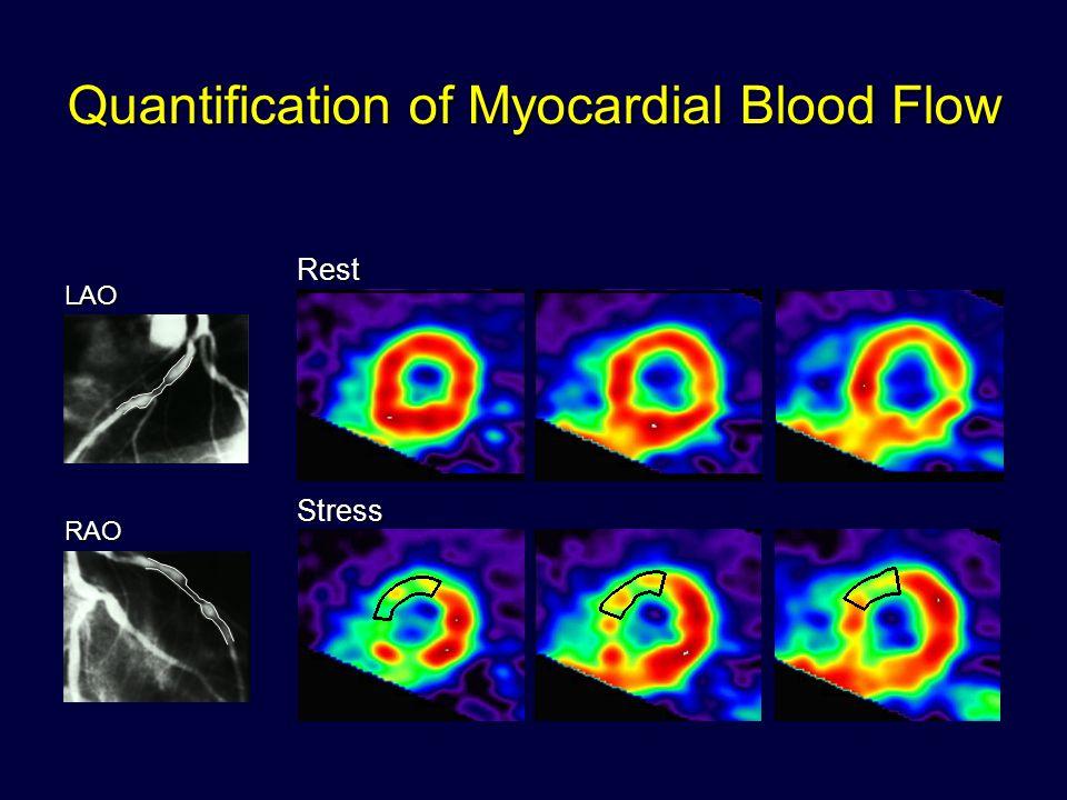 Quantification of Myocardial Blood Flow