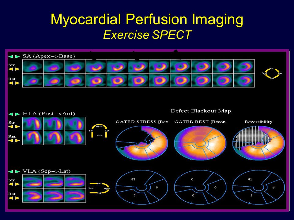 Myocardial Perfusion Imaging Exercise SPECT