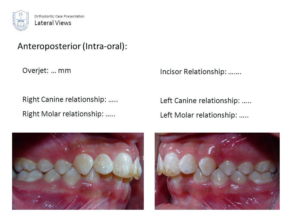 Anteroposterior (Intra-oral):