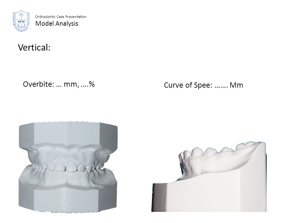 Vertical: Overbite: … mm, ….% Curve of Spee: ……. Mm Abdullah M. Edris