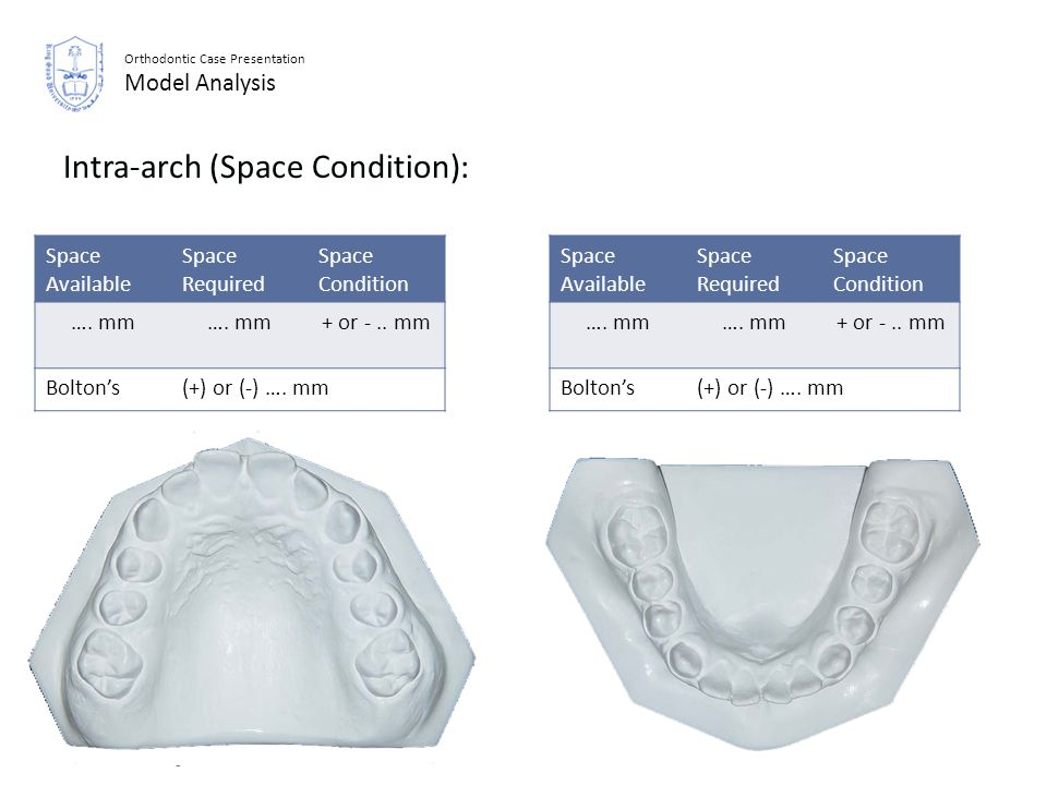 Intra-arch (Space Condition):