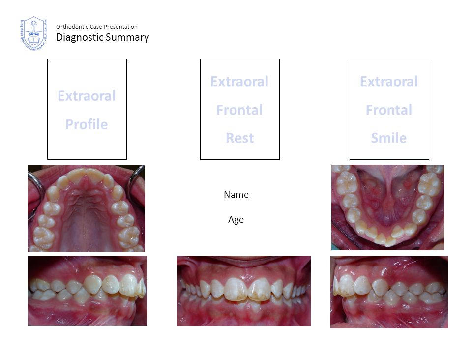 Extraoral Frontal Rest Extraoral Frontal Smile Extraoral Profile