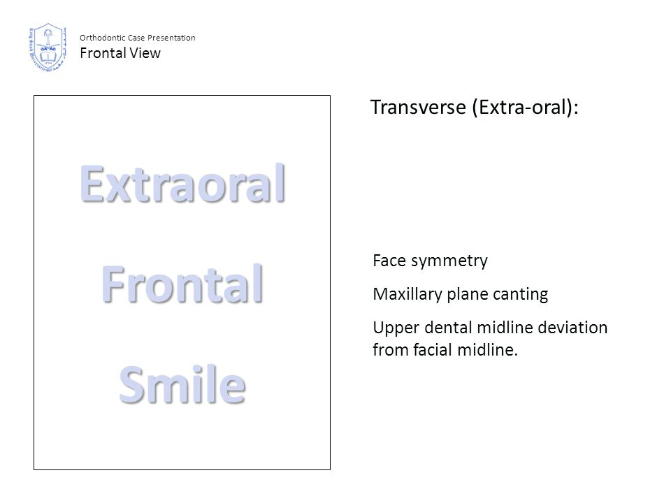 Extraoral Frontal Smile