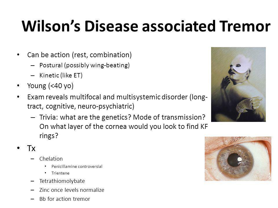 Wilson's Disease associated Tremor