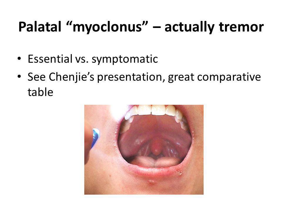 Palatal myoclonus – actually tremor