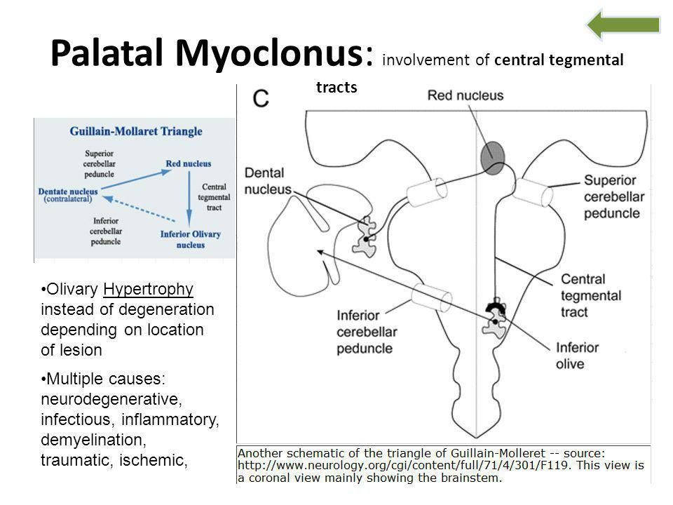 Palatal Myoclonus: involvement of central tegmental tracts