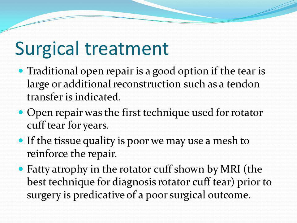 Surgical treatment Traditional open repair is a good option if the tear is large or additional reconstruction such as a tendon transfer is indicated.