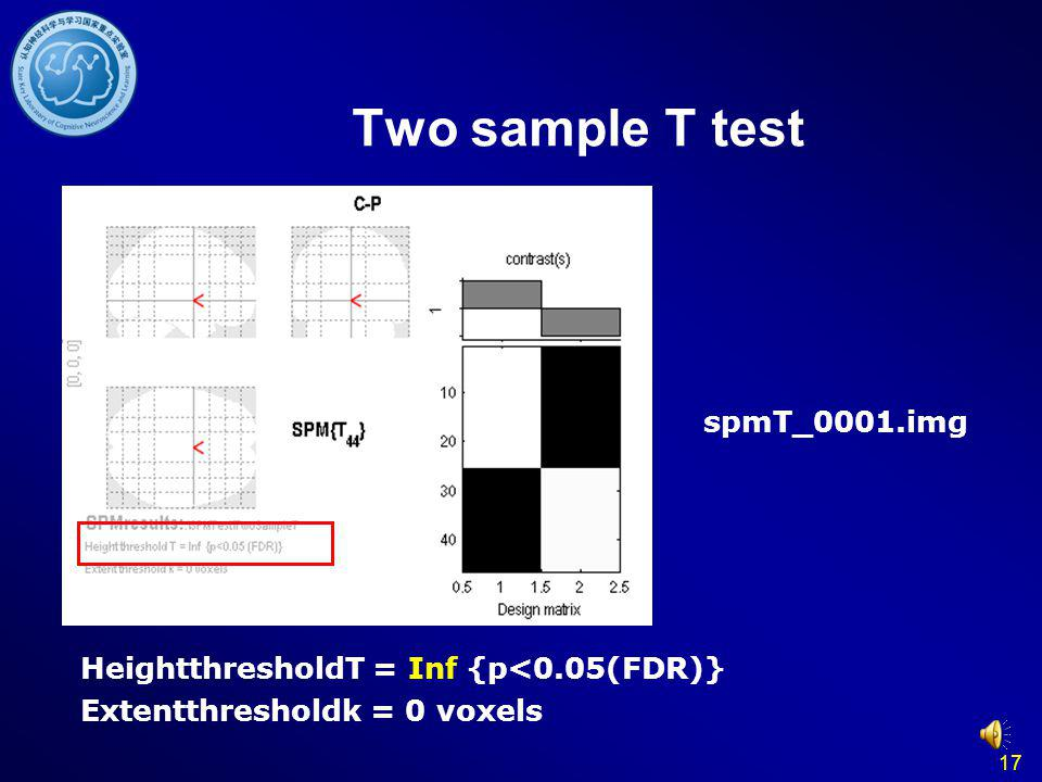 Two sample T test spmT_0001.img