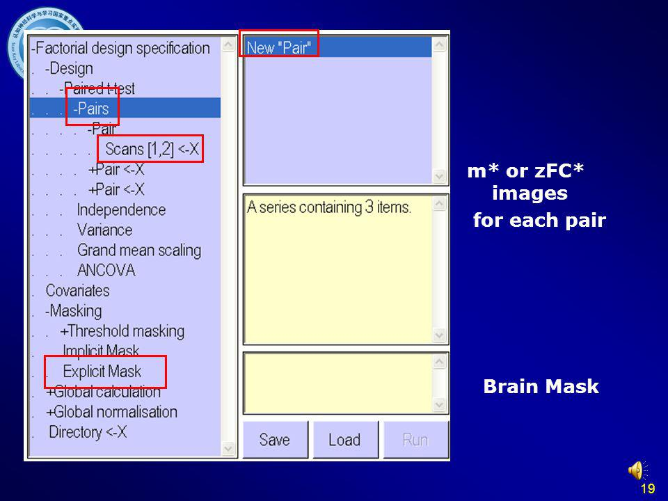 Paired T test m* or zFC* images for each pair Brain Mask 19