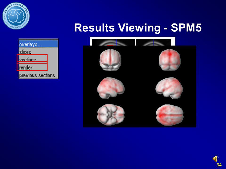 Results Viewing - SPM5 34