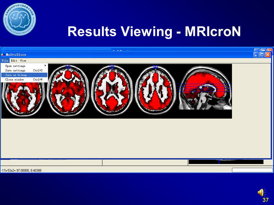 Results Viewing - MRIcroN