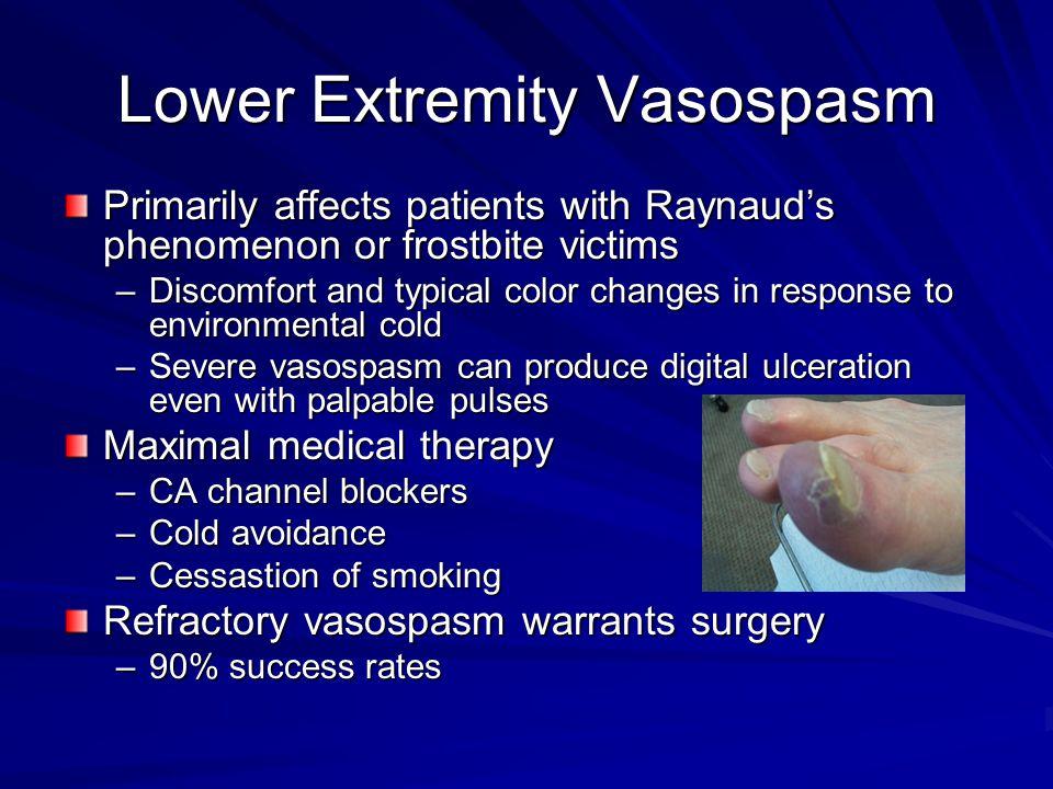 Lower Extremity Vasospasm