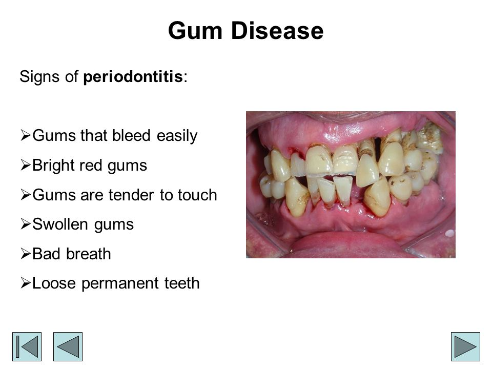 Gum Disease Signs of periodontitis: Gums that bleed easily