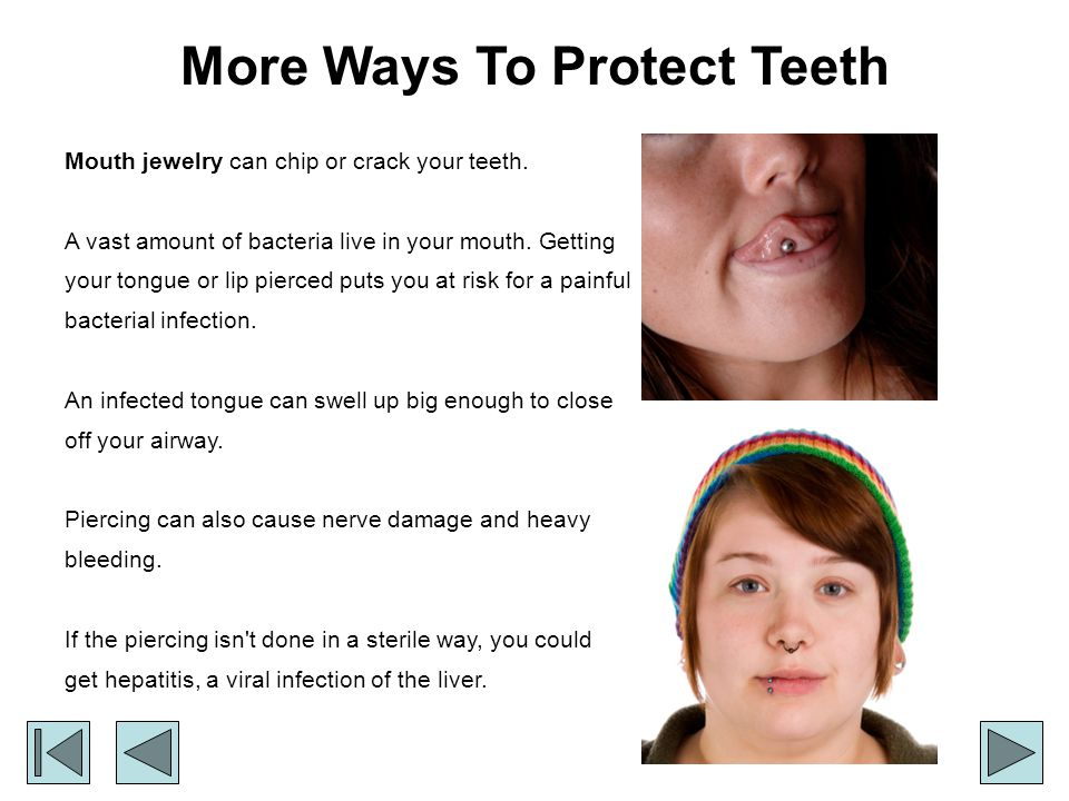 More Ways To Protect Teeth