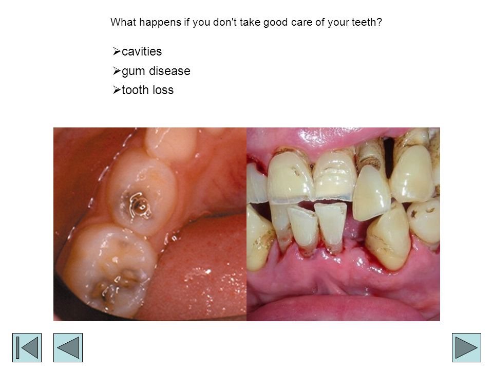 What happens if you don t take good care of your teeth
