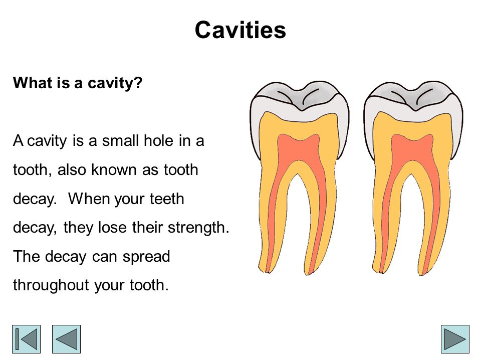 Cavities What is a cavity