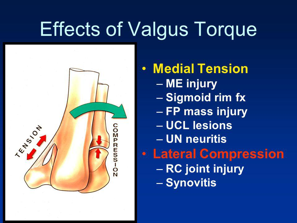 Effects of Valgus Torque
