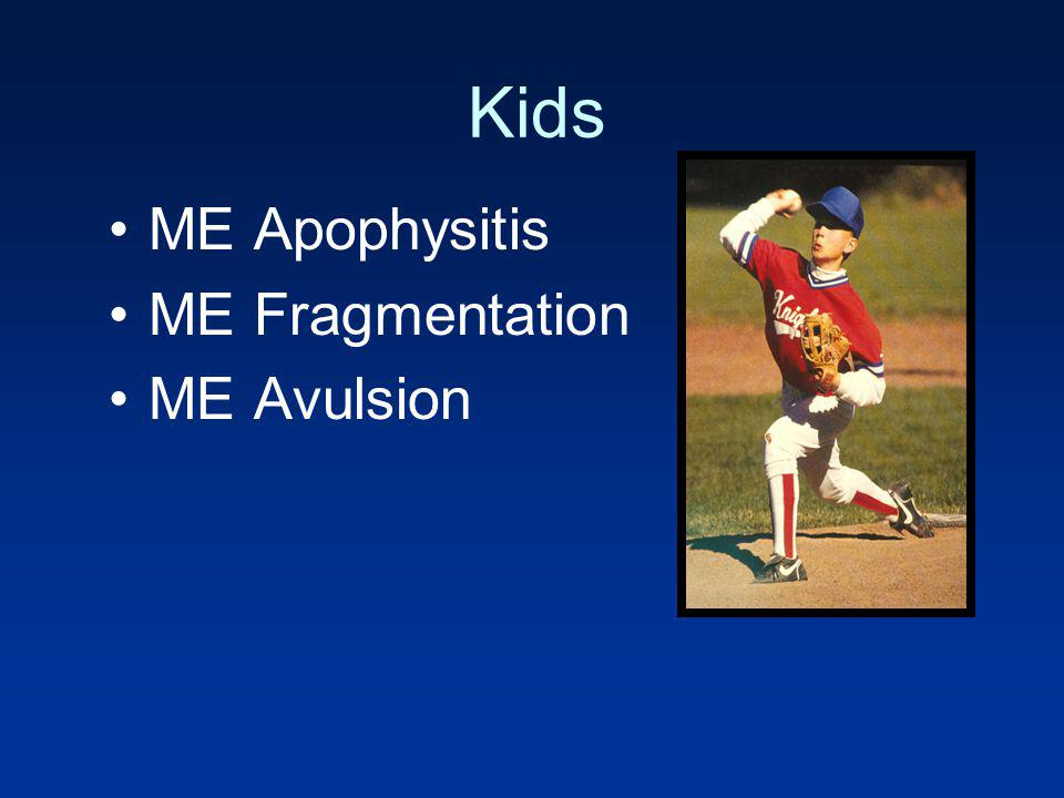 Kids ME Apophysitis ME Fragmentation ME Avulsion