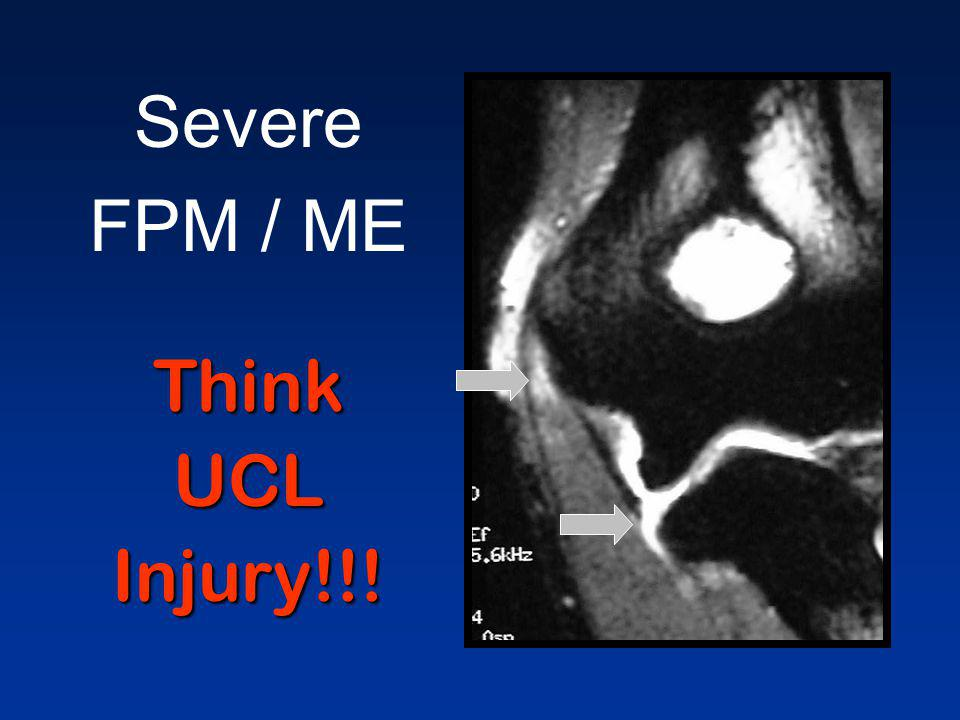 Severe FPM / ME Think UCL Injury!!!