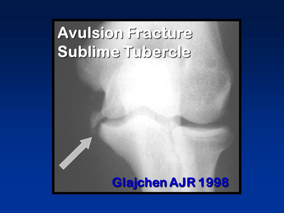 Avulsion Fracture Sublime Tubercle