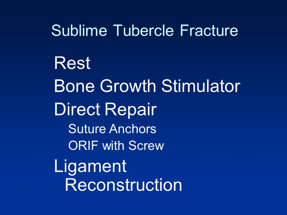 Sublime Tubercle Fracture