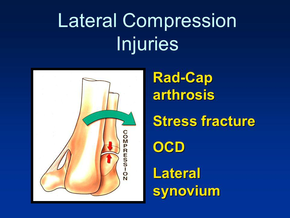 Lateral Compression Injuries