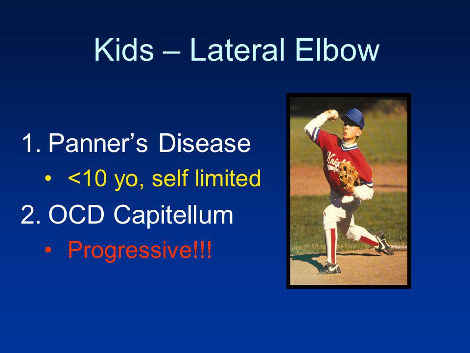 Kids – Lateral Elbow Panner's Disease OCD Capitellum