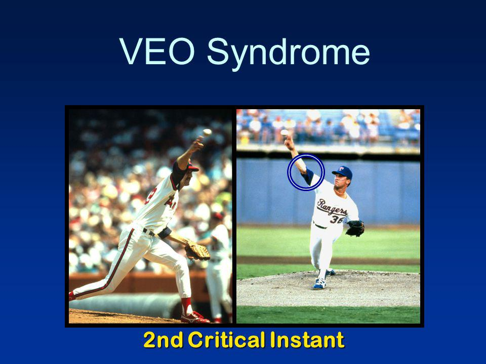 VEO Syndrome 2nd Critical Instant