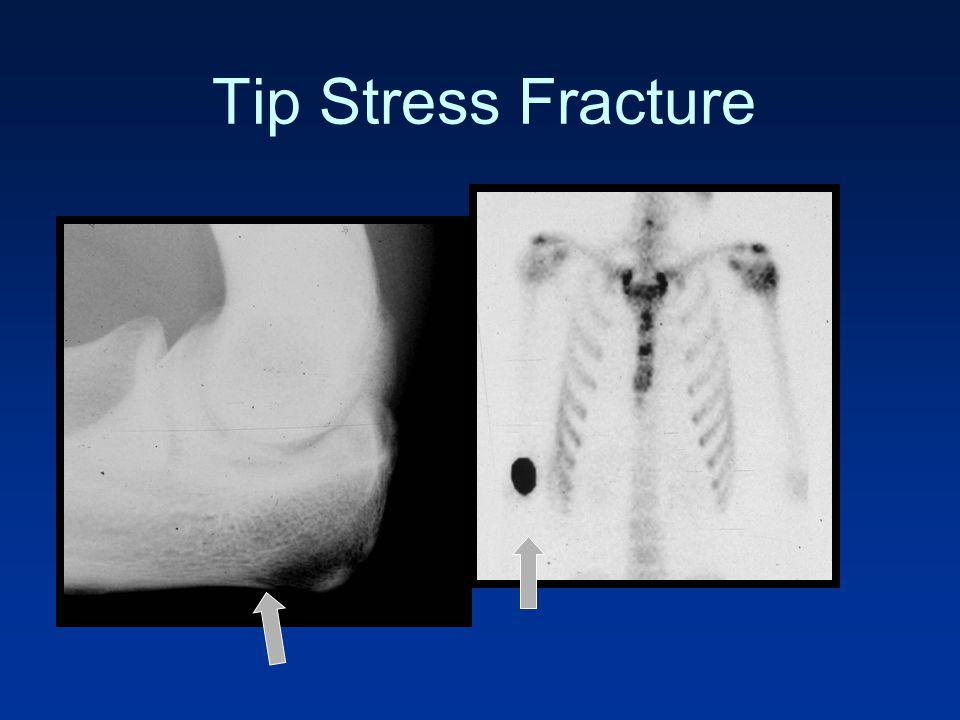 Tip Stress Fracture