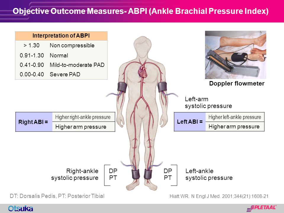 Objective Outcome Measures- ABPI (Ankle Brachial Pressure Index)