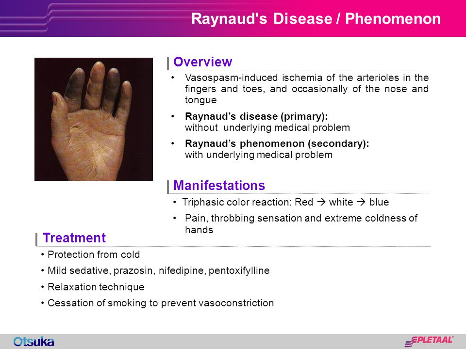 Raynaud s Disease / Phenomenon