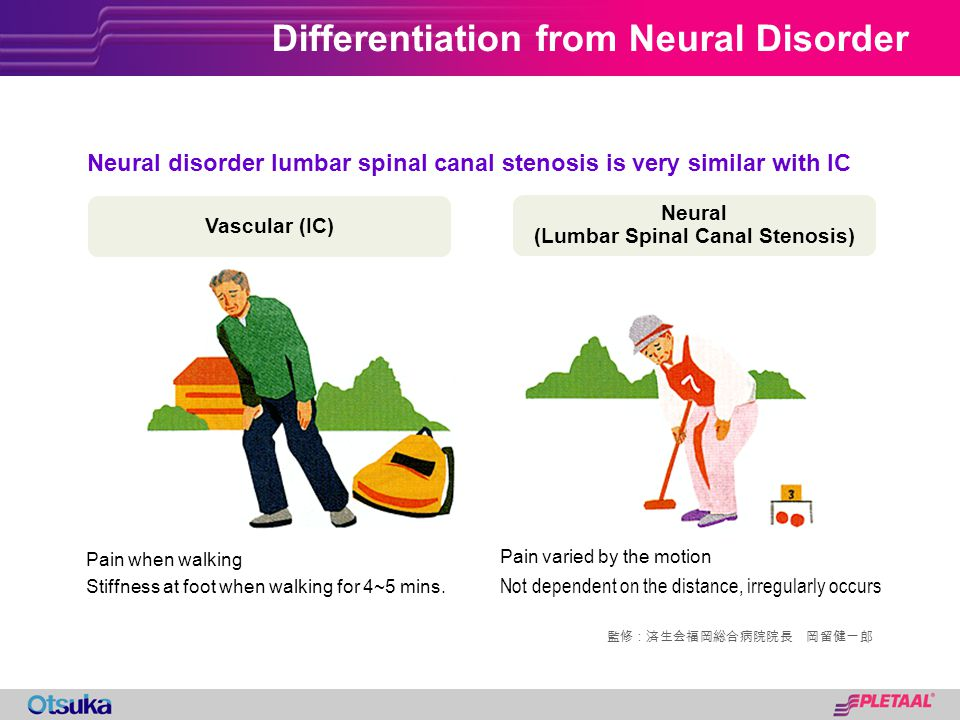 Differentiation from Neural Disorder