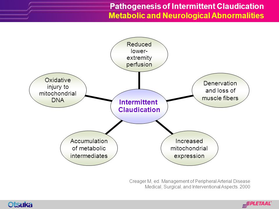 Pathogenesis of Intermittent Claudication Metabolic and Neurological Abnormalities