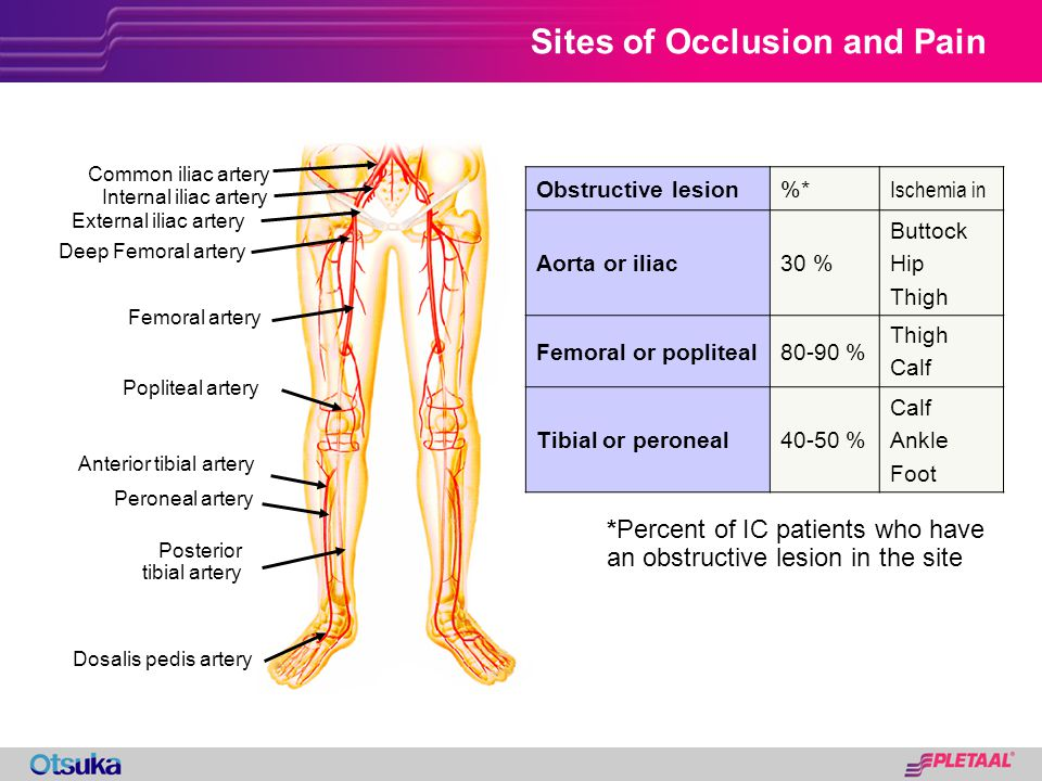 Sites of Occlusion and Pain