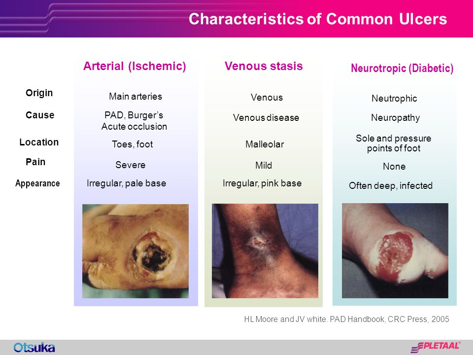 Characteristics of Common Ulcers