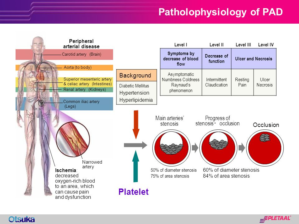 Patholophysiology of PAD