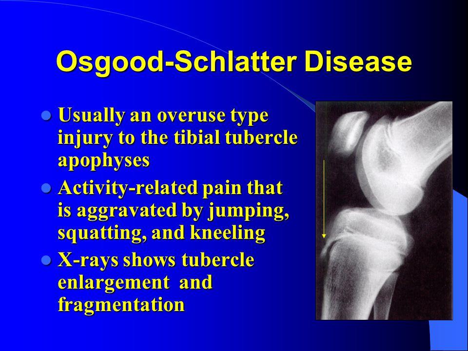 Osgood-Schlatter Disease