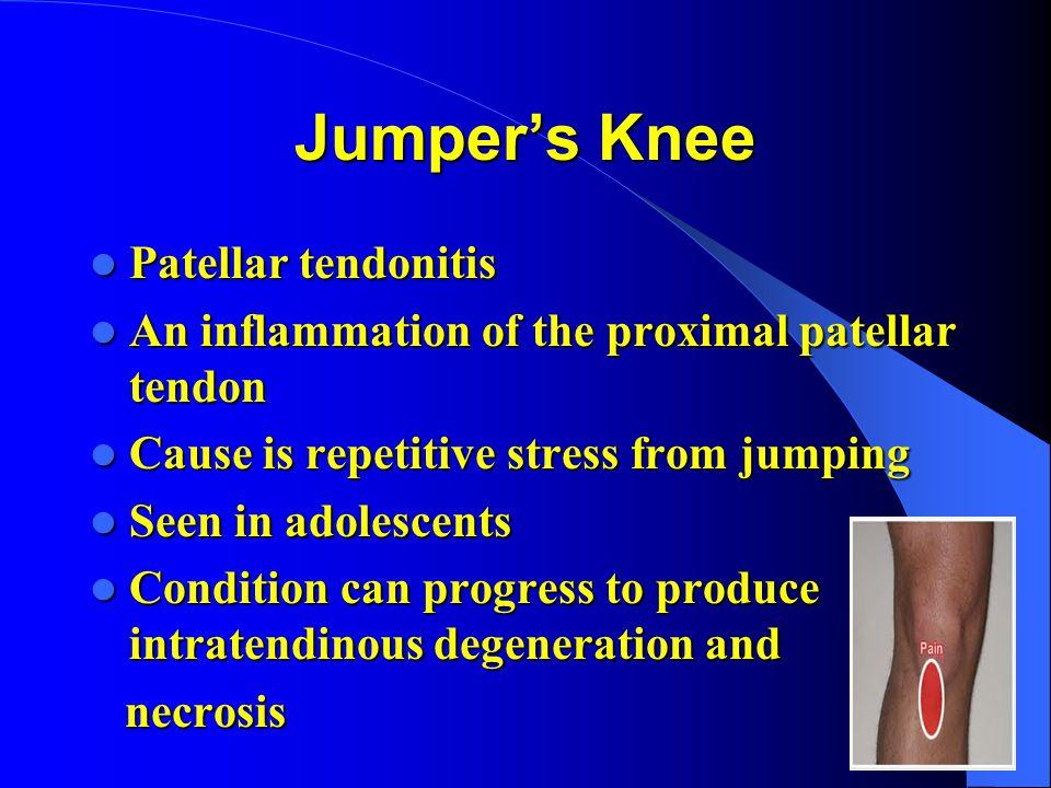 Jumper's Knee Patellar tendonitis