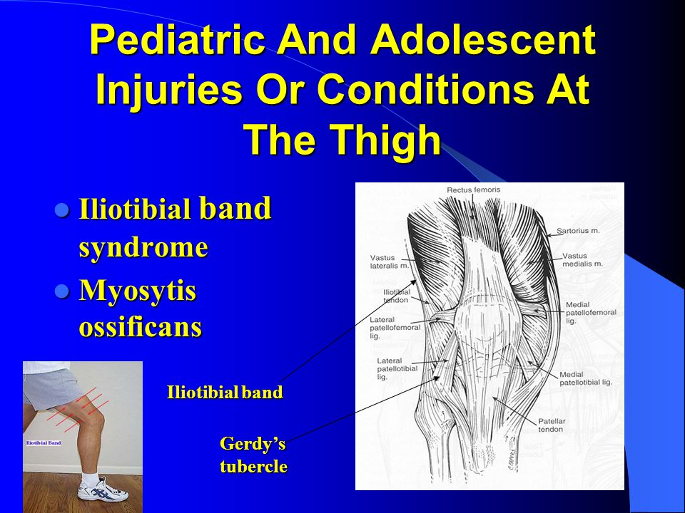 Pediatric And Adolescent Injuries Or Conditions At The Thigh
