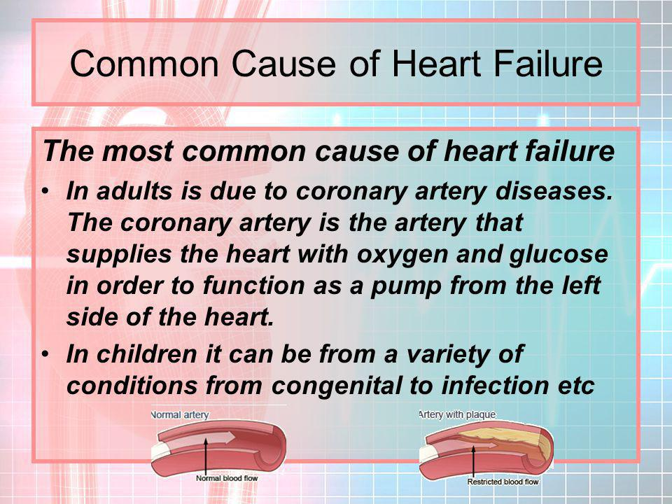 Common Cause of Heart Failure